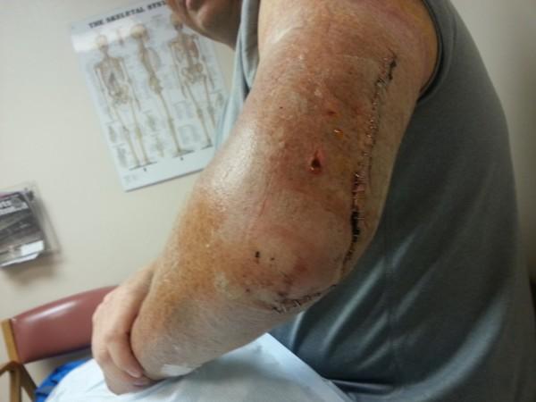 broken arm humerus staples suture slice