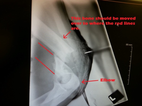 Broken arm humorous compound fracture