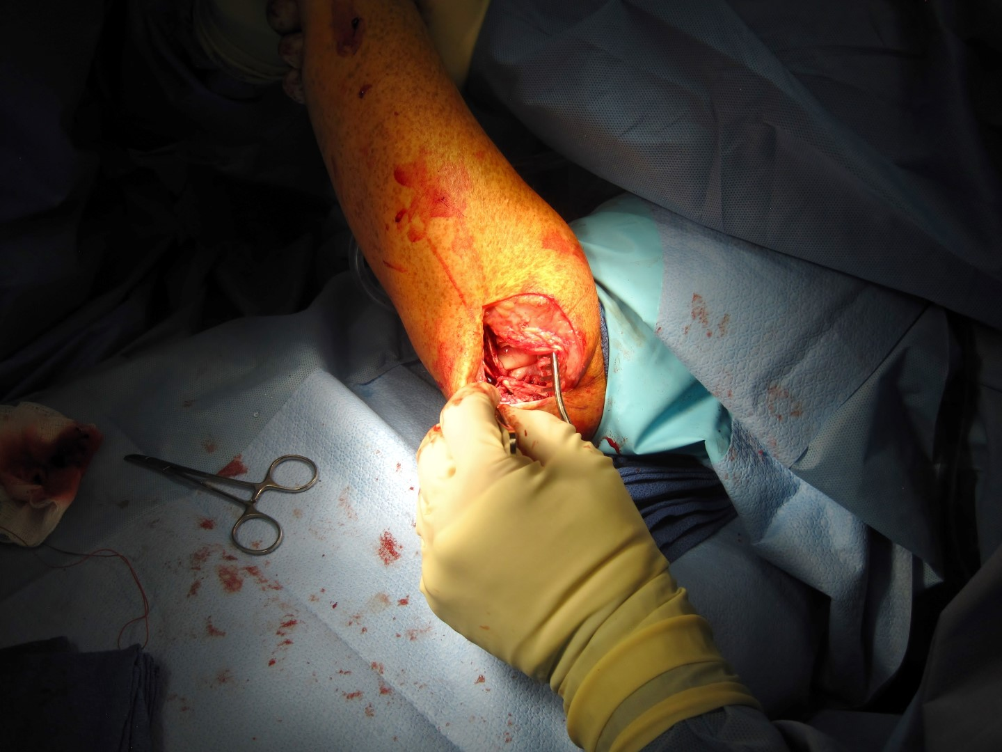 arm surgery 3 elbow humerus tendon reconstruction