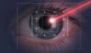 Lasik eye laser vision correction nearsighted